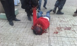 bloodied youth lies on street